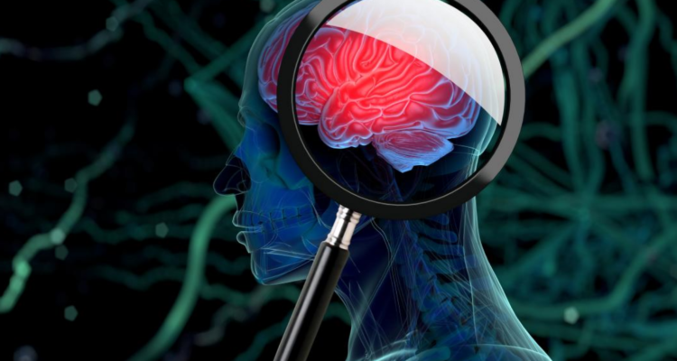 Study Shows Evidence of Fungal Infection in Multiple Sclerosis